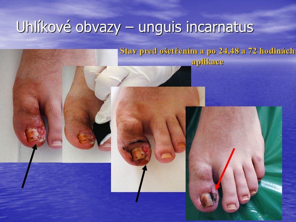 Uhlíkové obvazy – unguis incarnatus