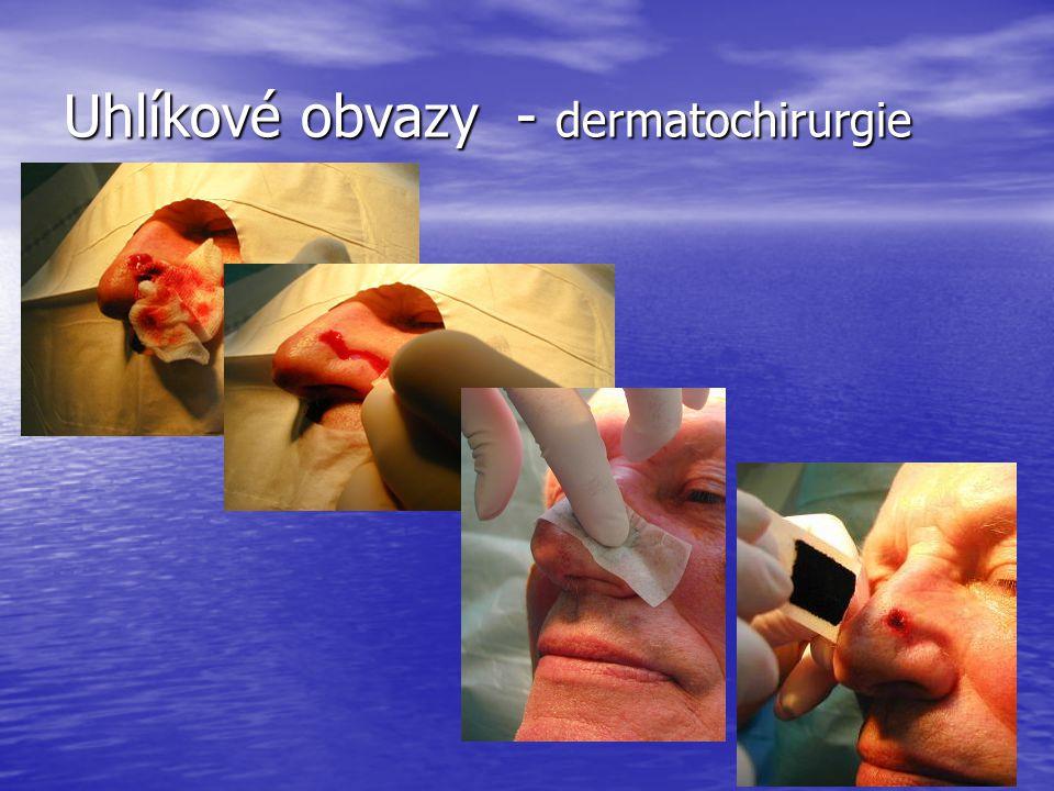 Uhlíkové obvazy - dermatochirurgie