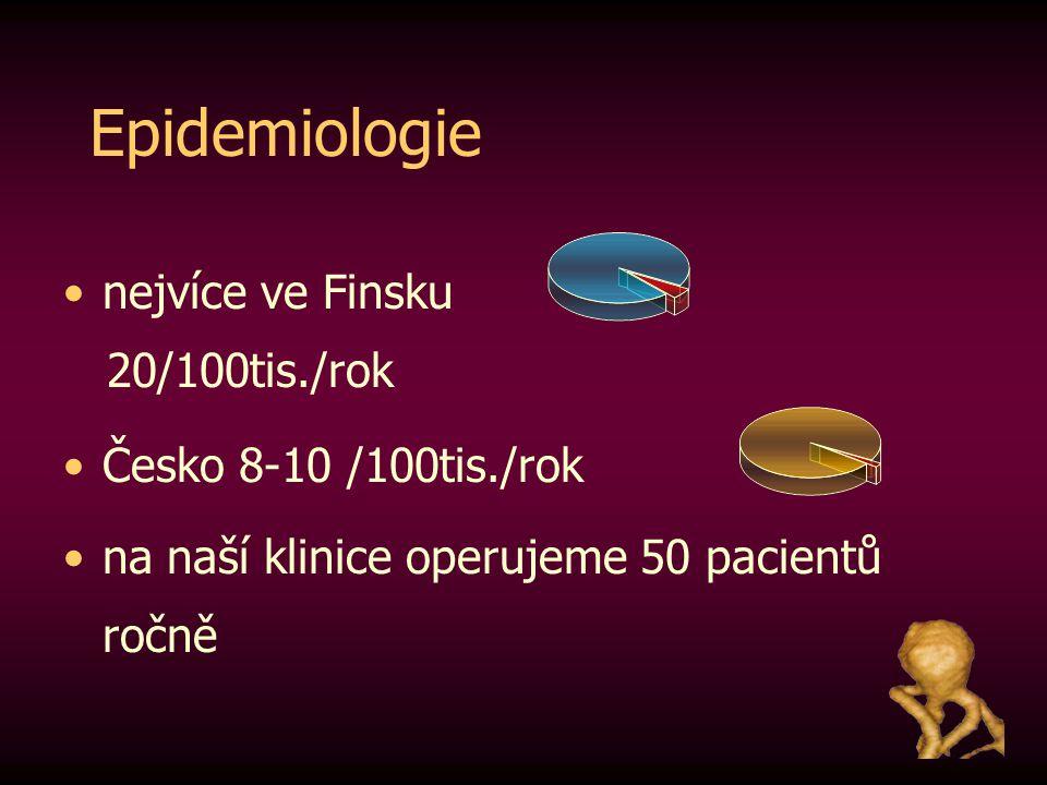 Epidemiologie nejvíce ve Finsku 20/100tis./rok Česko 8-10 /100tis./rok