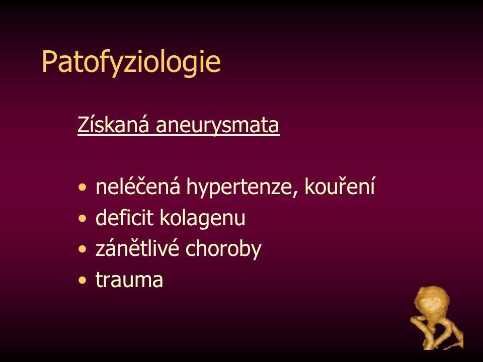 Patofyziologie Získaná aneurysmata neléčená hypertenze, kouření