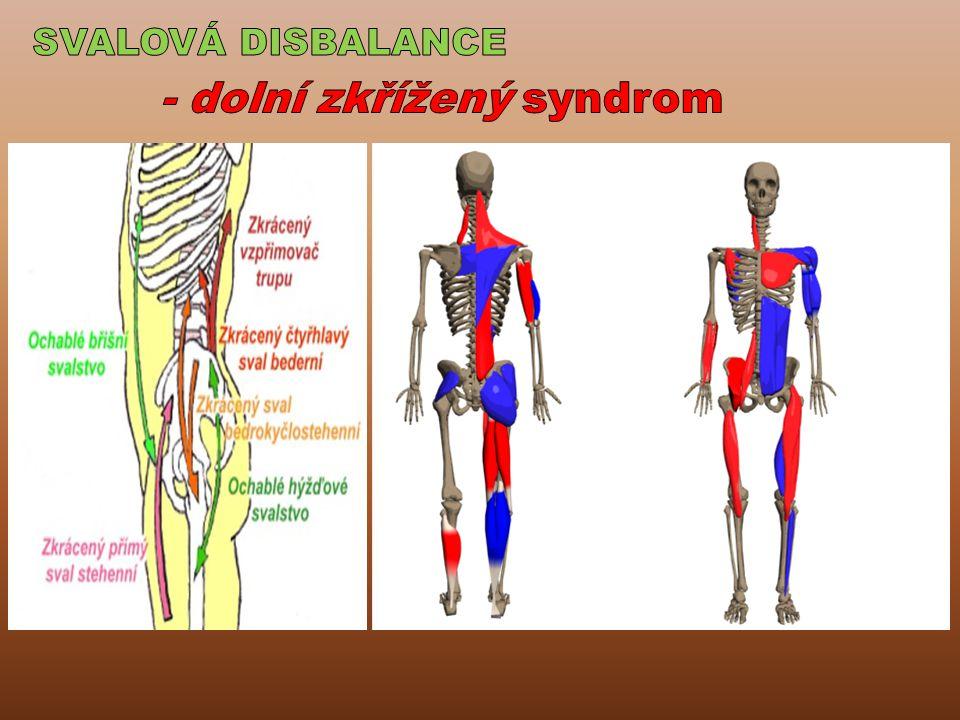 - dolní zkřížený syndrom