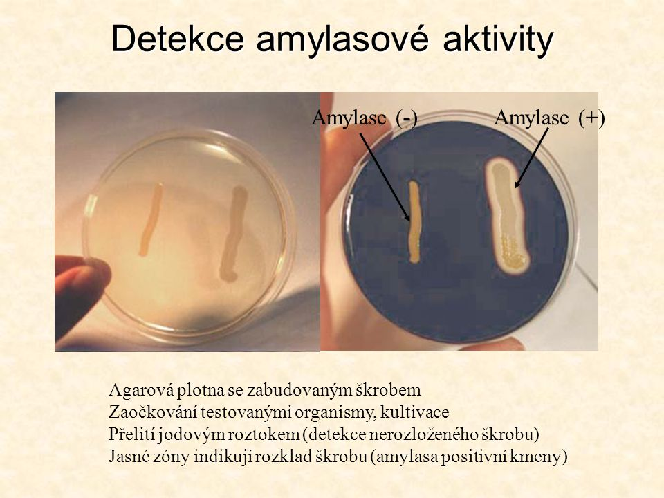 Detekce amylasové aktivity