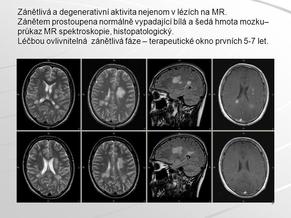 Zánětlivá a degenerativní aktivita nejenom v lézích na MR