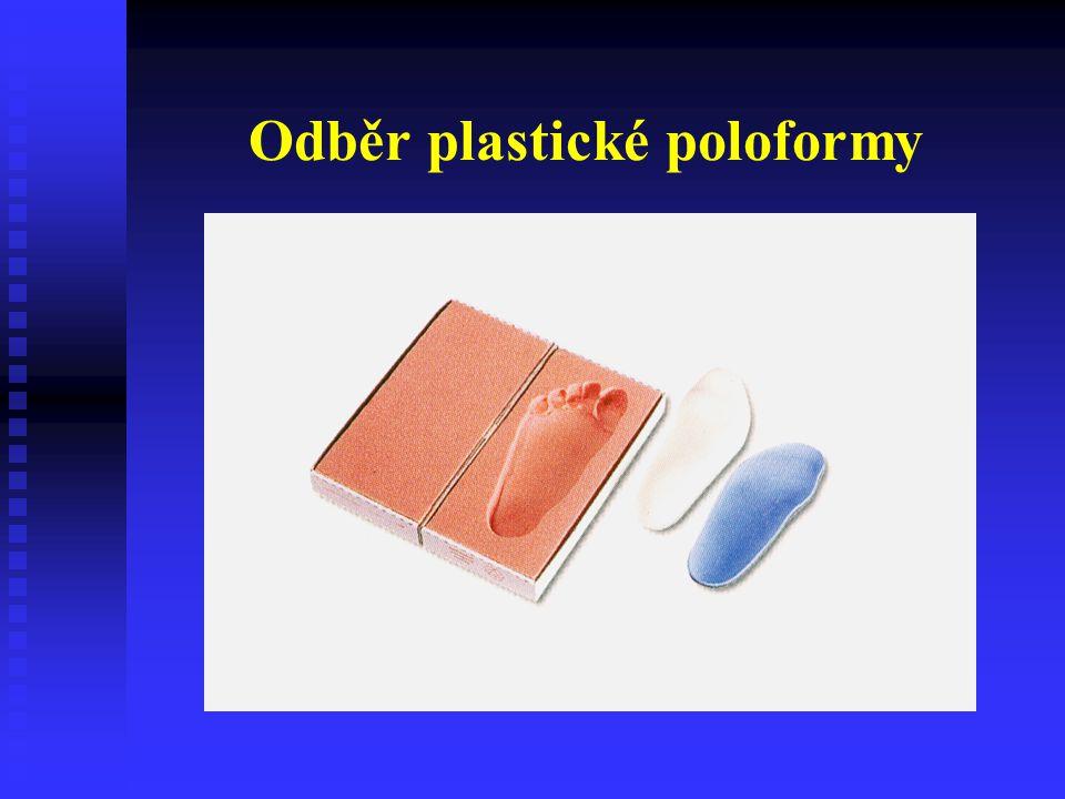 Odběr plastické poloformy