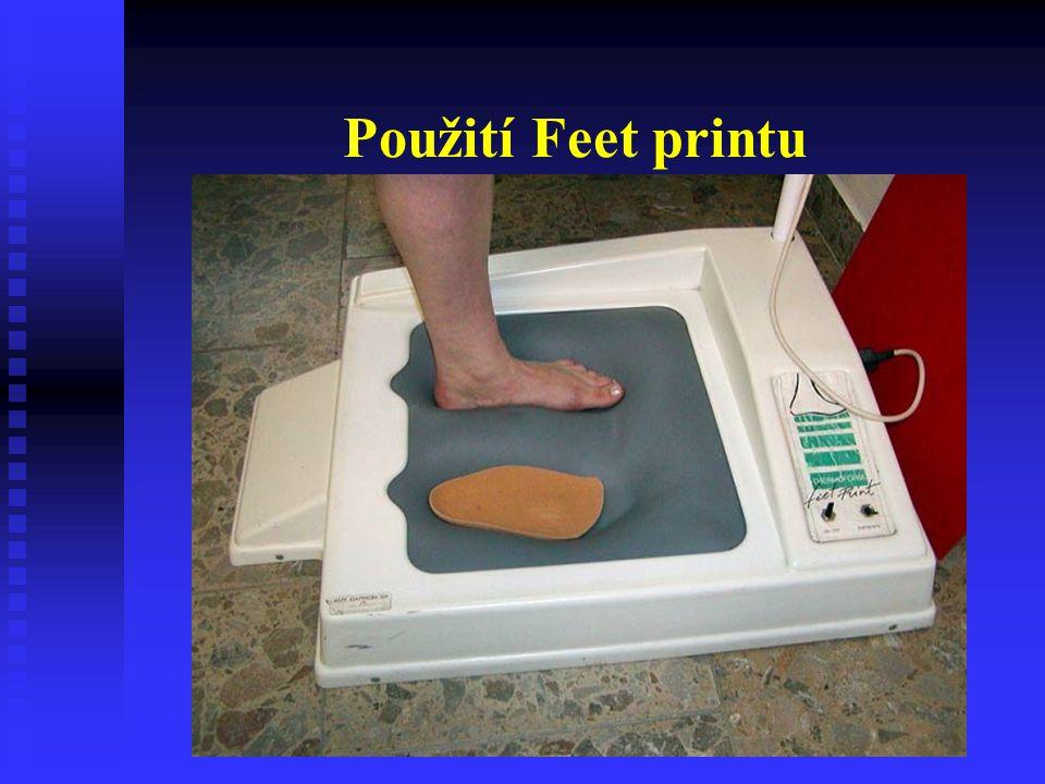 Použití Feet printu