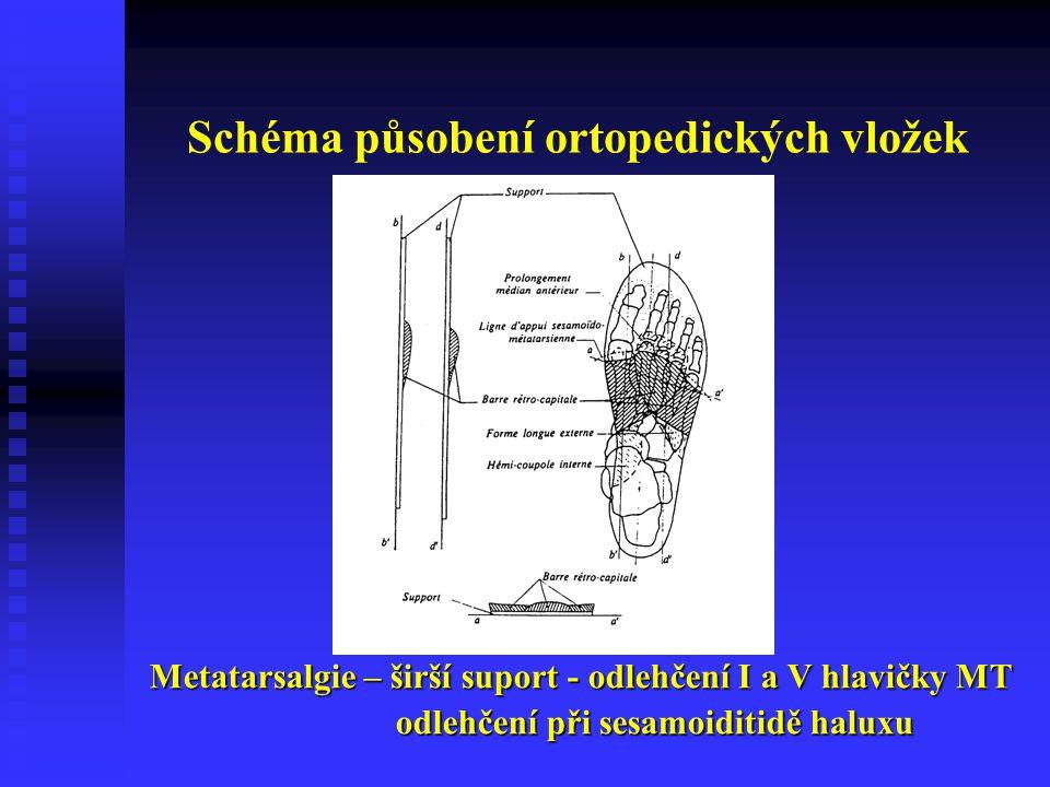 Schéma působení ortopedických vložek