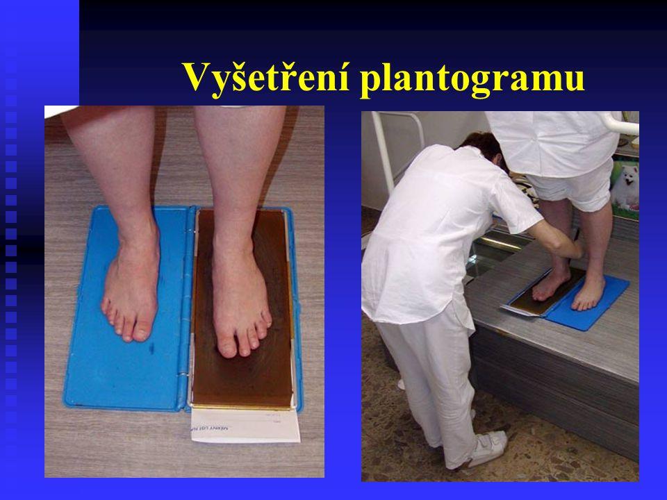 Vyšetření plantogramu