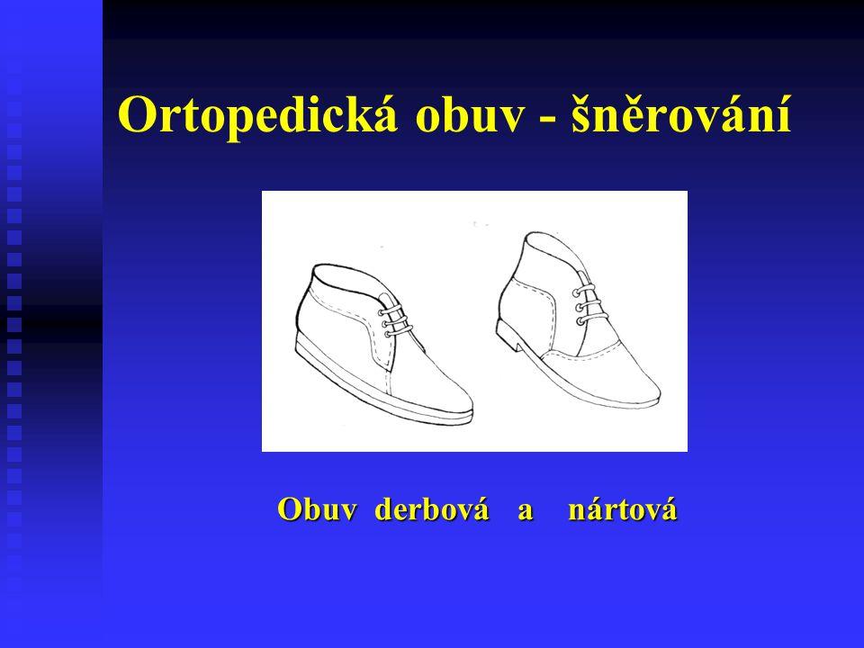 Ortopedická obuv - šněrování