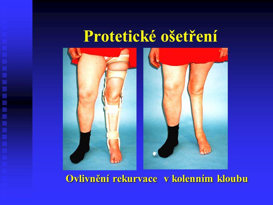 Ovlivnění rekurvace v kolenním kloubu