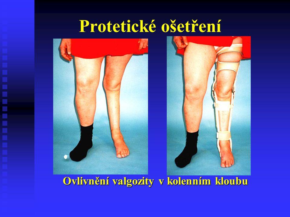 Protetické ošetření Ovlivnění valgozity v kolenním kloubu