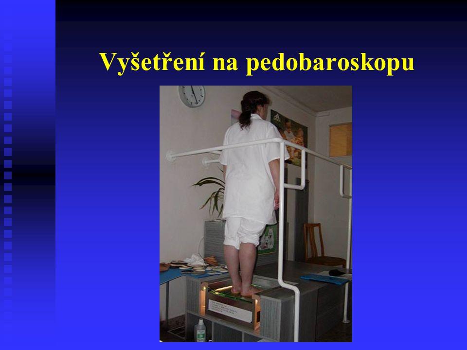 Vyšetření na pedobaroskopu