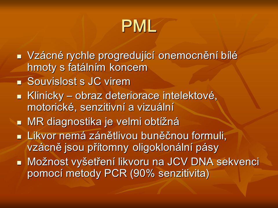 PML Vzácné rychle progredující onemocnění bílé hmoty s fatálním koncem