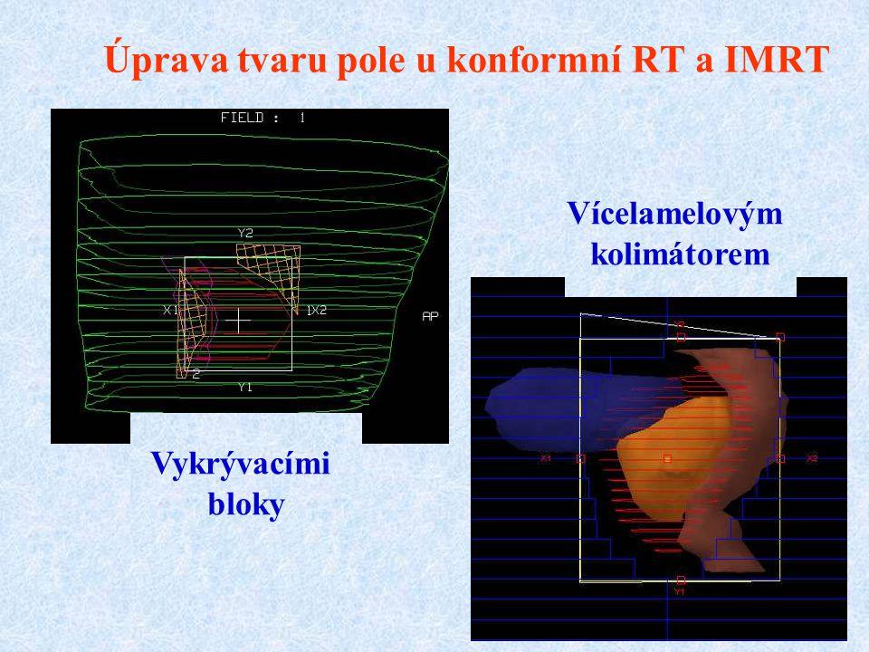 Úprava tvaru pole u konformní RT a IMRT