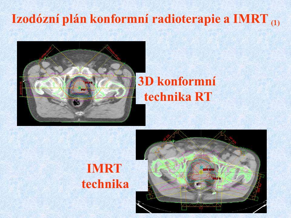 Izodózní plán konformní radioterapie a IMRT (1)