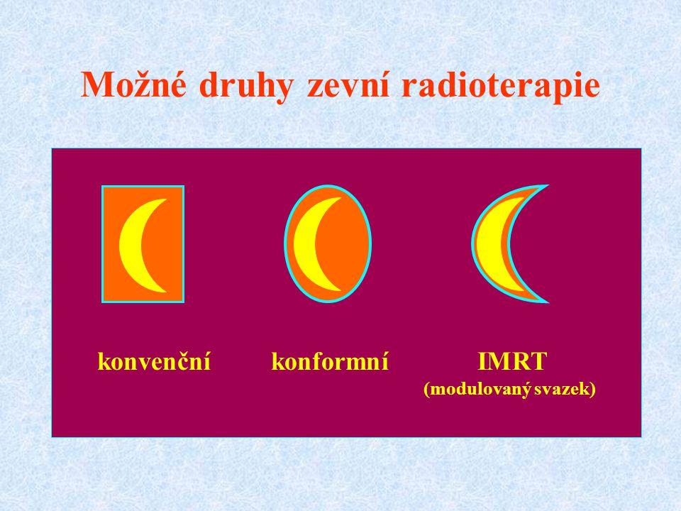 Možné druhy zevní radioterapie