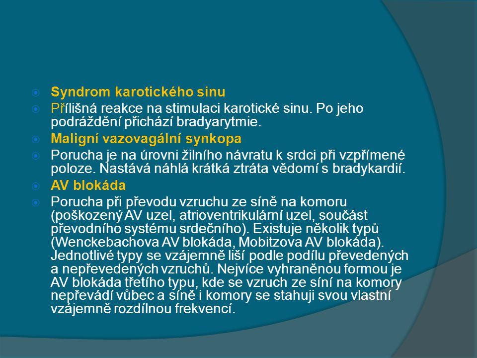 Syndrom karotického sinu
