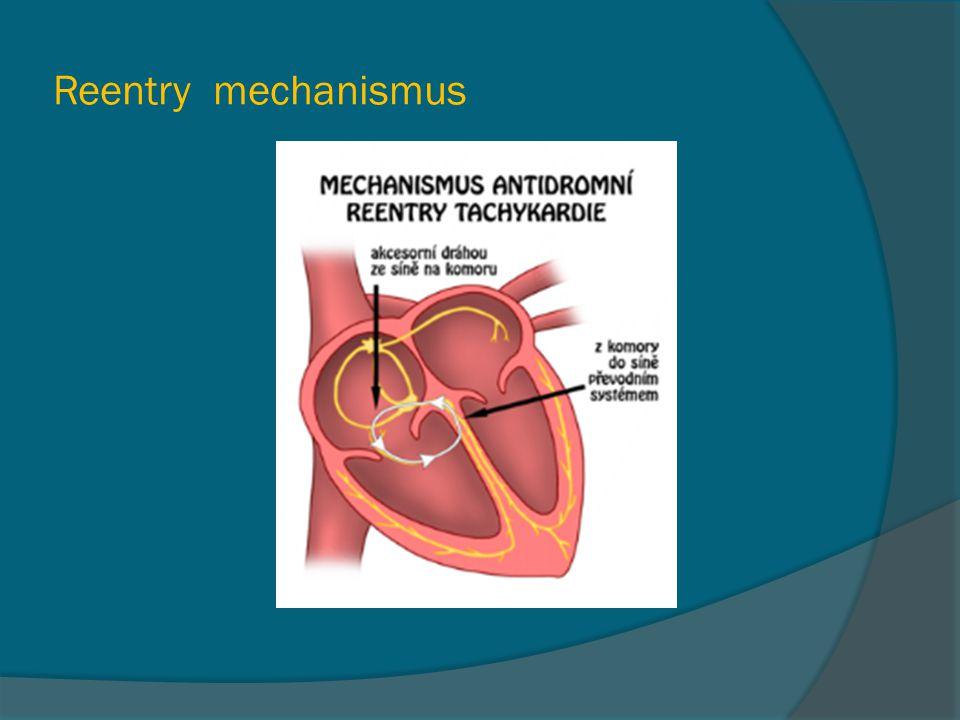 Reentry mechanismus