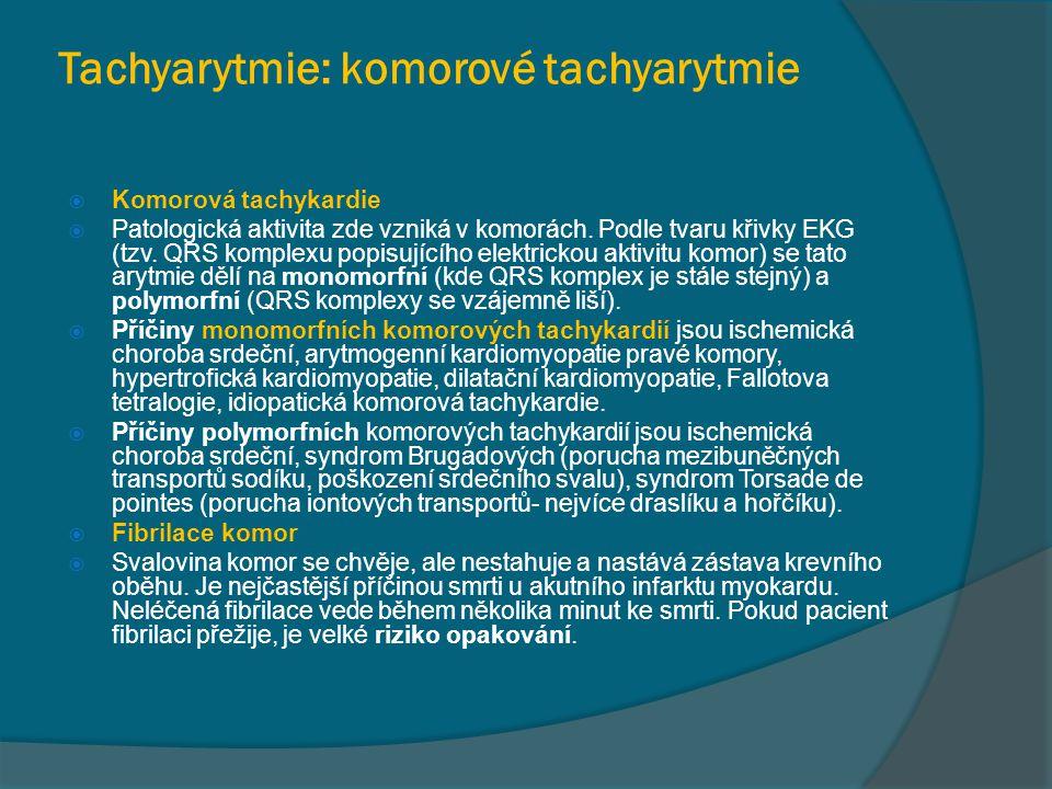 Tachyarytmie: komorové tachyarytmie