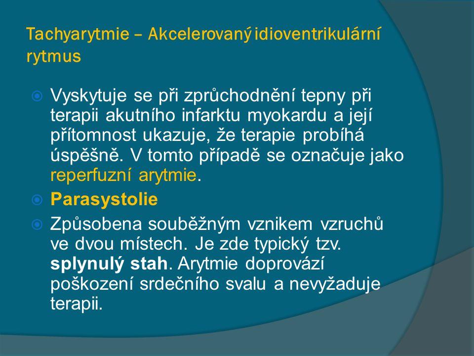 Tachyarytmie – Akcelerovaný idioventrikulární rytmus