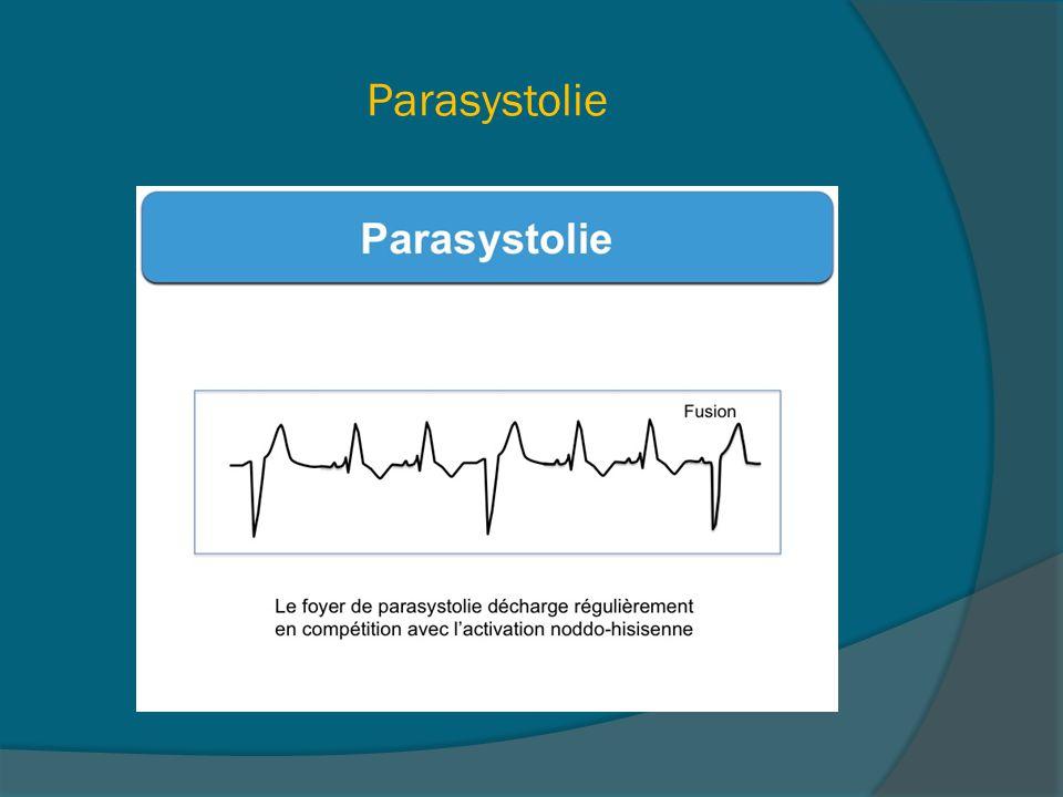 Parasystolie