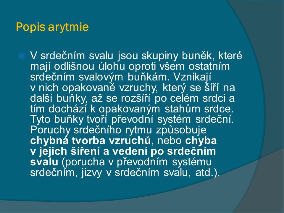 Popis arytmie