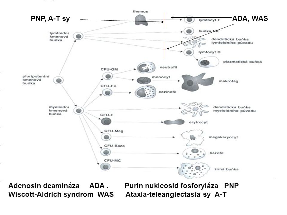 PNP, A-T sy ADA, WAS. Adenosin deamináza ADA , Purin nukleosid fosforyláza PNP.
