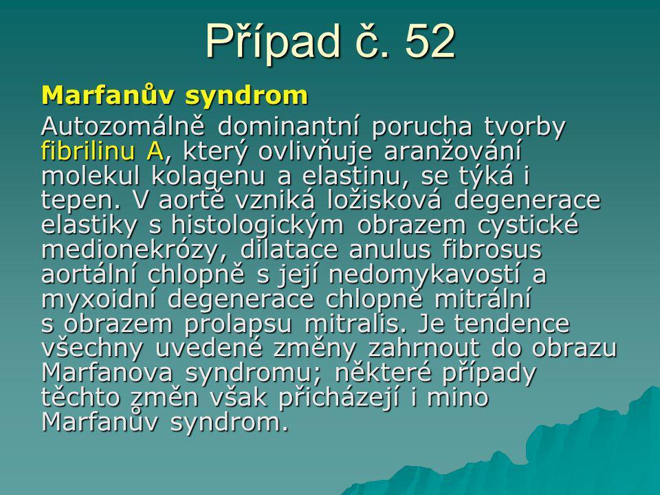 Případ č. 52 Marfanův syndrom