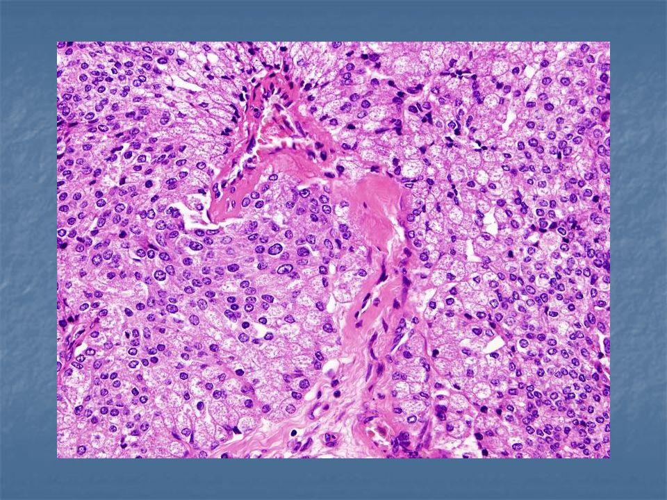 M31776/99 acinický karcinom s dediferenciací (Fojtášková)