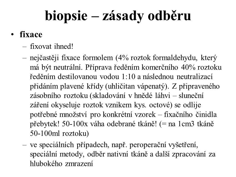 biopsie – zásady odběru