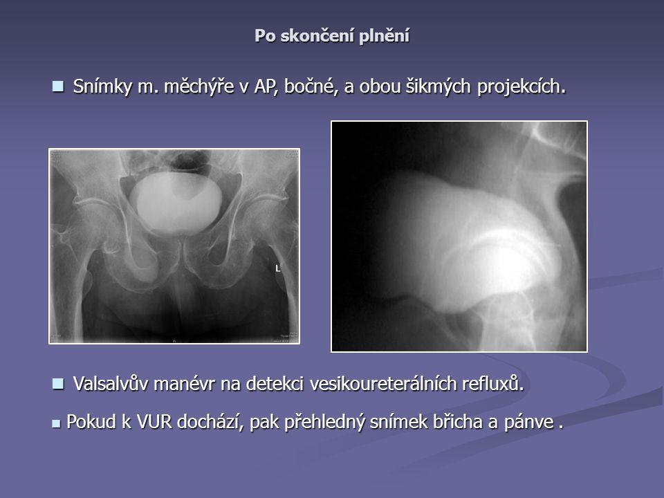 Snímky m. měchýře v AP, bočné, a obou šikmých projekcích.