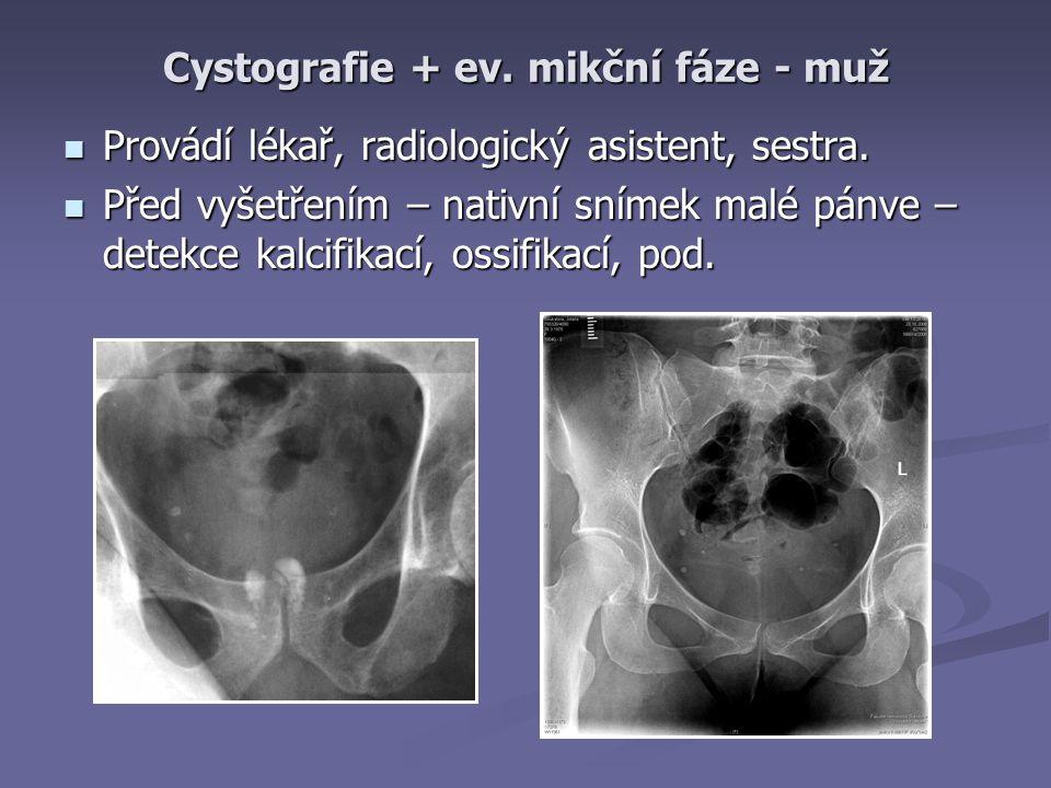Cystografie + ev. mikční fáze - muž