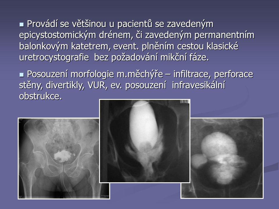 Provádí se většinou u pacientů se zavedeným epicystostomickým drénem, či zavedeným permanentním balonkovým katetrem, event. plněním cestou klasické uretrocystografie bez požadování mikční fáze.
