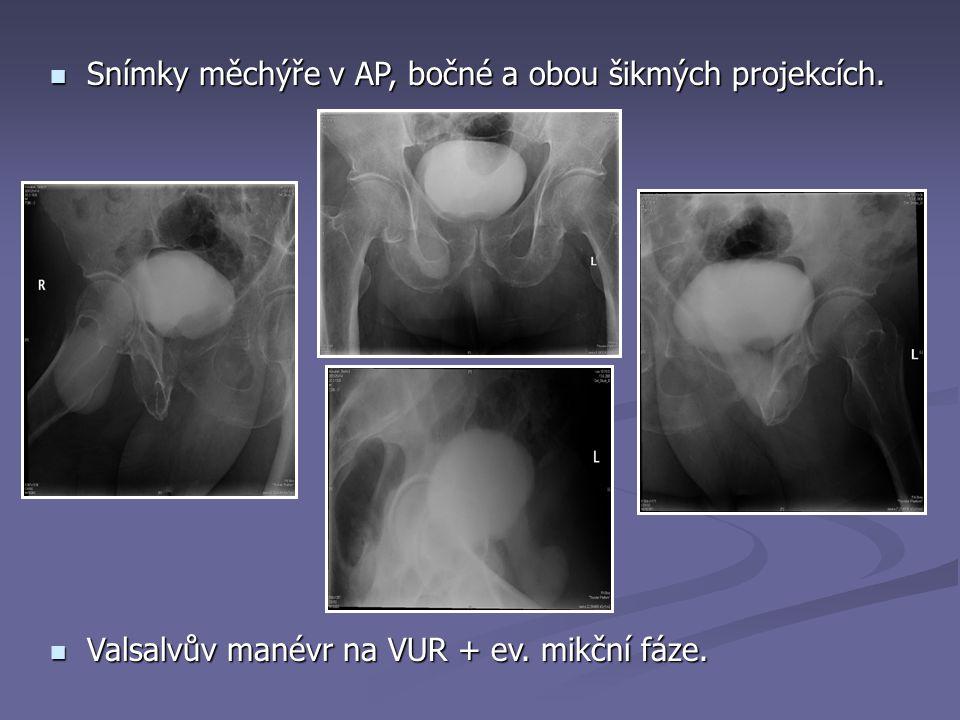 Snímky měchýře v AP, bočné a obou šikmých projekcích.