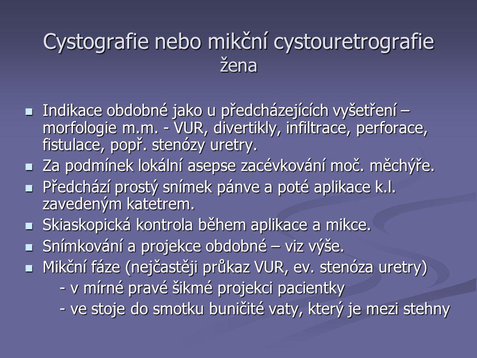 Cystografie nebo mikční cystouretrografie žena