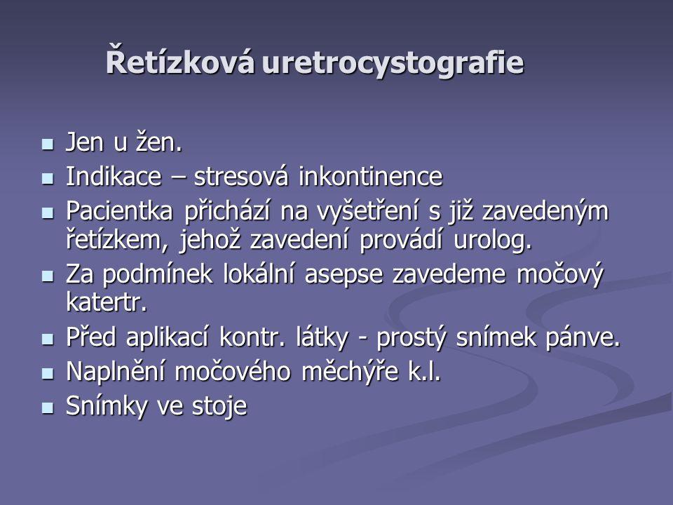 Řetízková uretrocystografie
