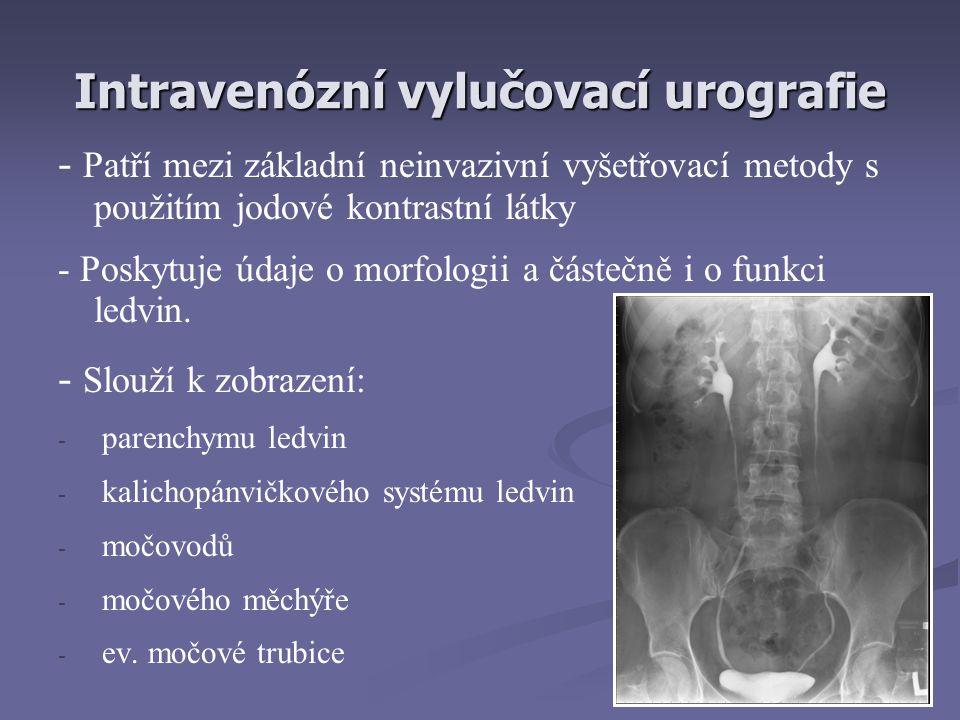 Intravenózní vylučovací urografie