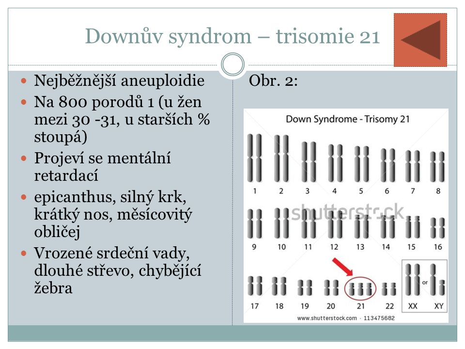 Downův syndrom – trisomie 21