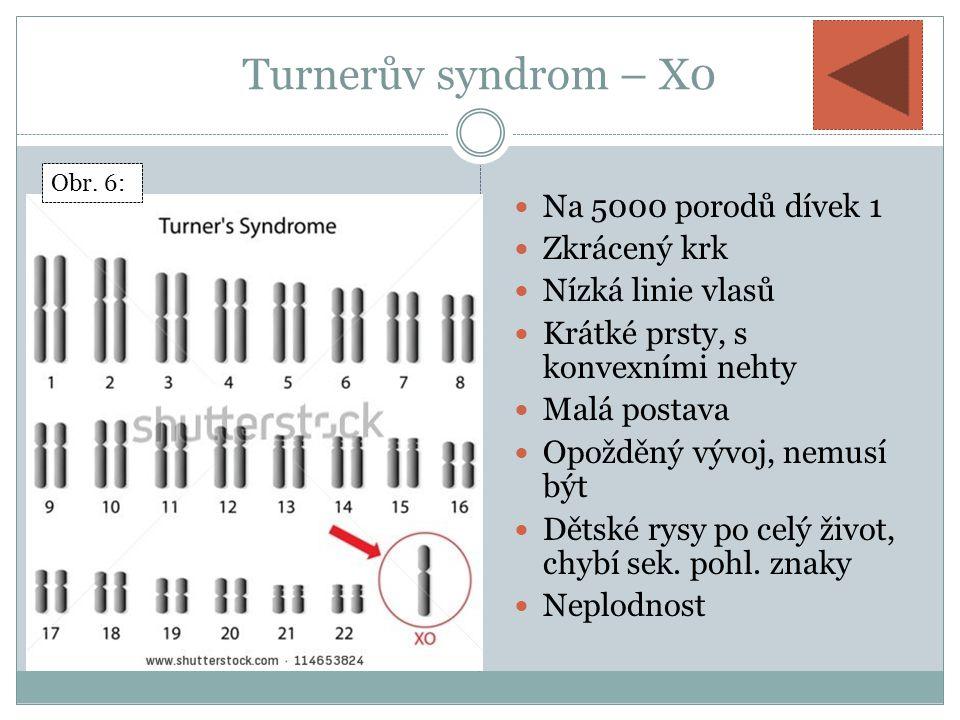 Turnerův syndrom – X0 Na 5000 porodů dívek 1 Zkrácený krk