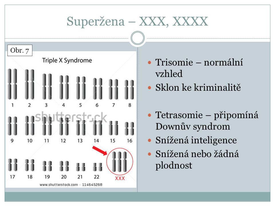 Superžena – XXX, XXXX Trisomie – normální vzhled Sklon ke kriminalitě