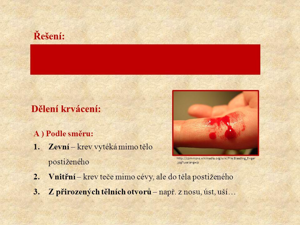 Řešení: Dělení krvácení: Dospělý člověk má průměrně 4-6 litrů krve.