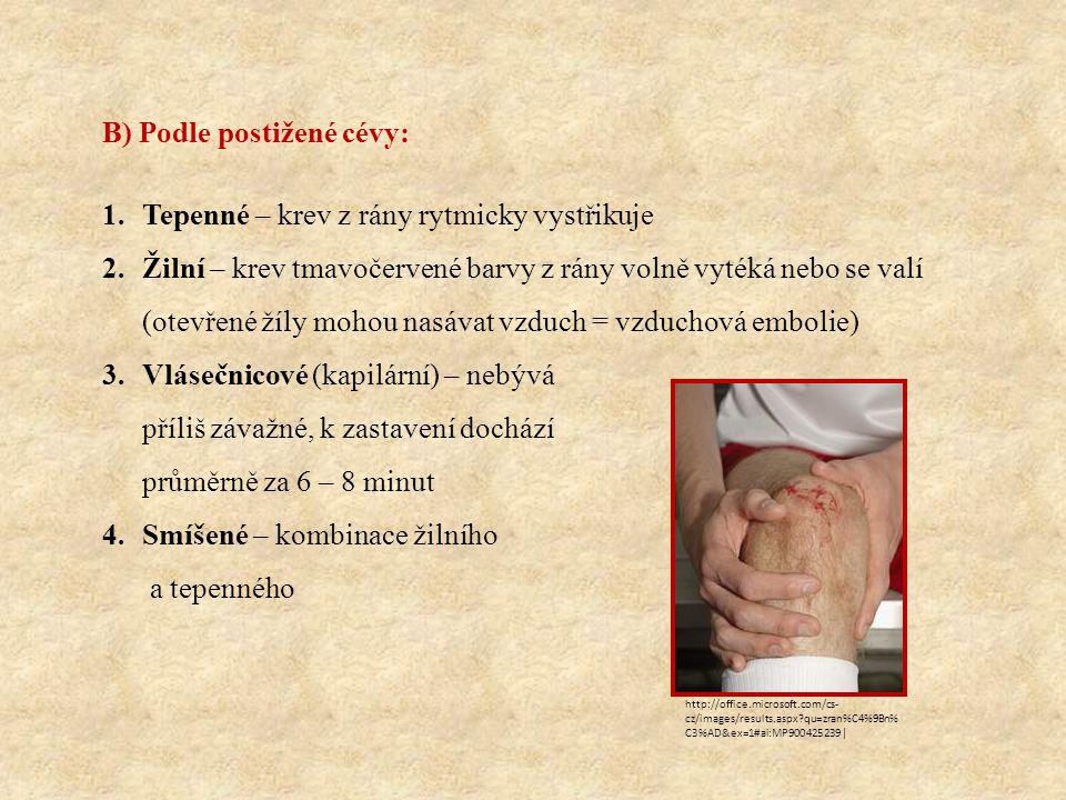 B) Podle postižené cévy: Tepenné – krev z rány rytmicky vystřikuje