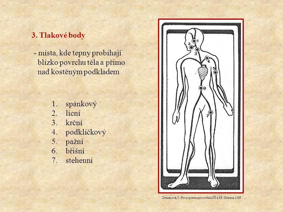 3. Tlakové body - místa, kde tepny probíhají blízko povrchu těla a přímo nad kostěným podkladem.