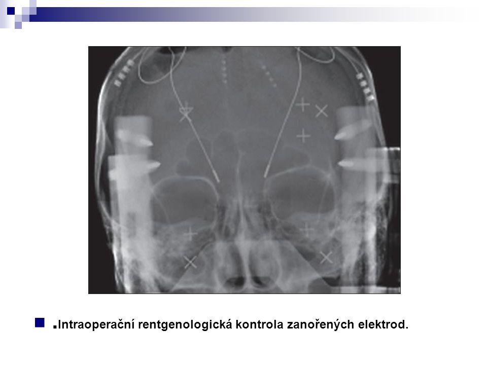 .Intraoperační rentgenologická kontrola zanořených elektrod.
