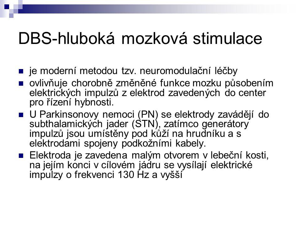 DBS-hluboká mozková stimulace