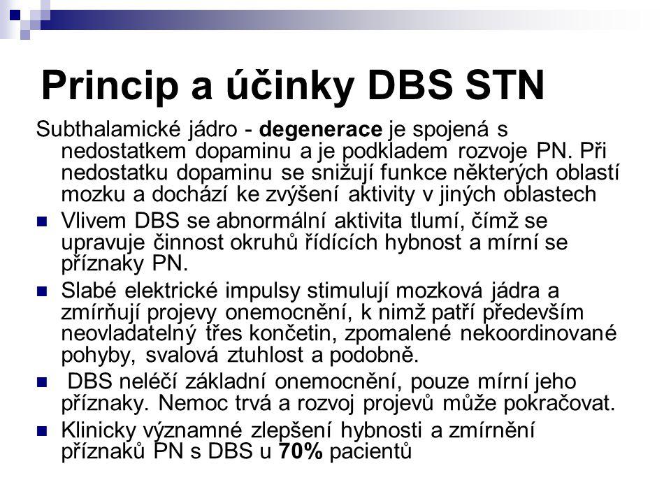 Princip a účinky DBS STN