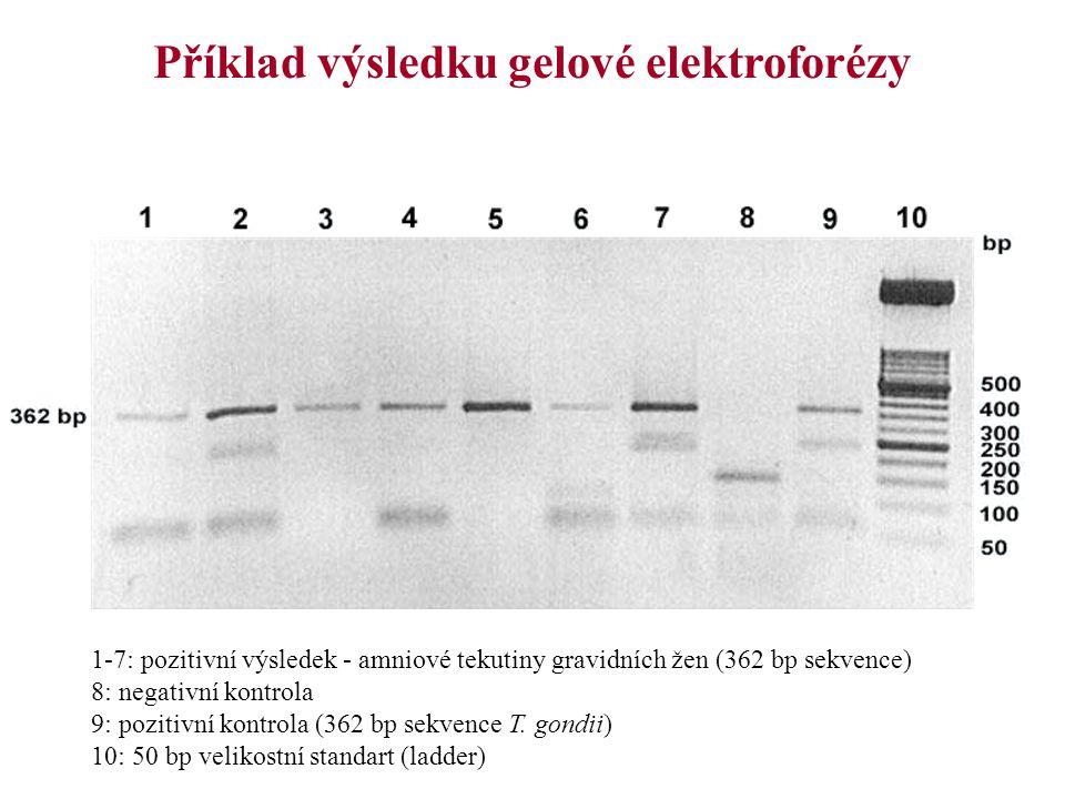Příklad výsledku gelové elektroforézy