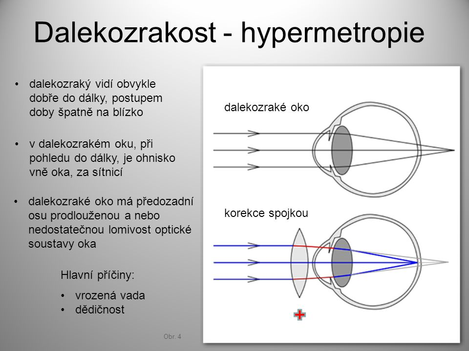Dalekozrakost - hypermetropie