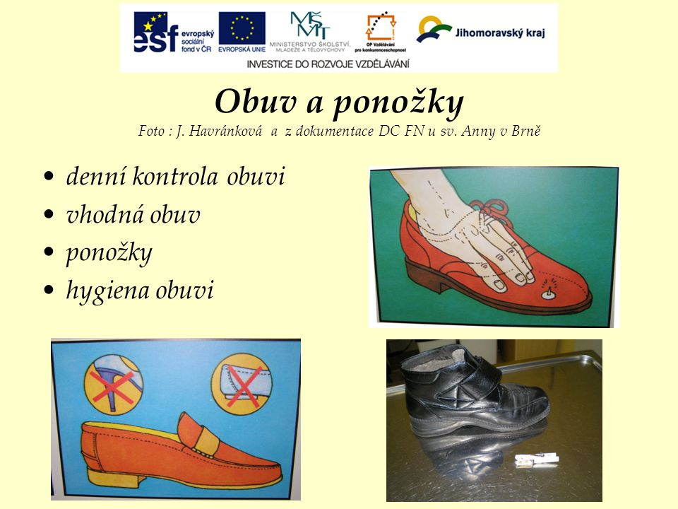 Obuv a ponožky Foto : J. Havránková a z dokumentace DC FN u sv