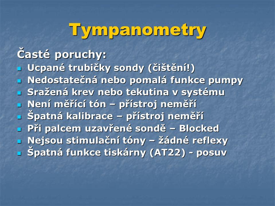 Tympanometry Časté poruchy: Ucpané trubičky sondy (čištění!)