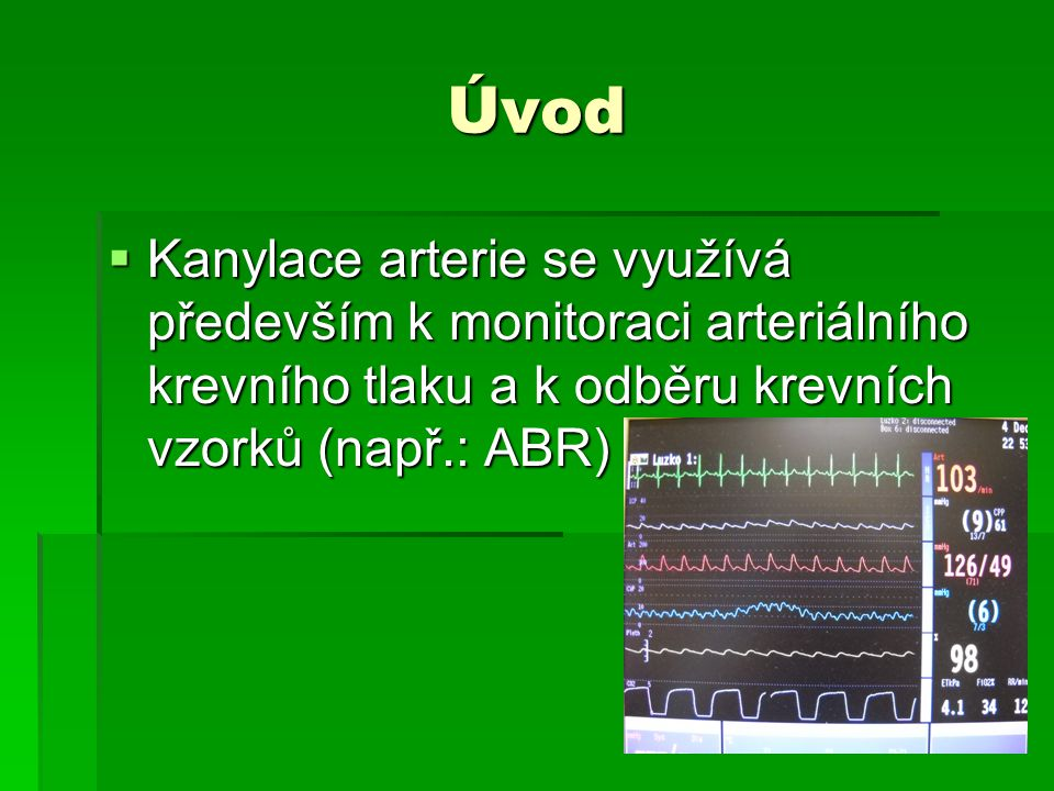 Úvod Kanylace arterie se využívá především k monitoraci arteriálního krevního tlaku a k odběru krevních vzorků (např.: ABR)
